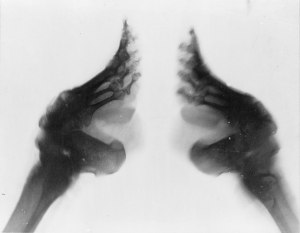 2048px-Bound_feet_(X-ray)